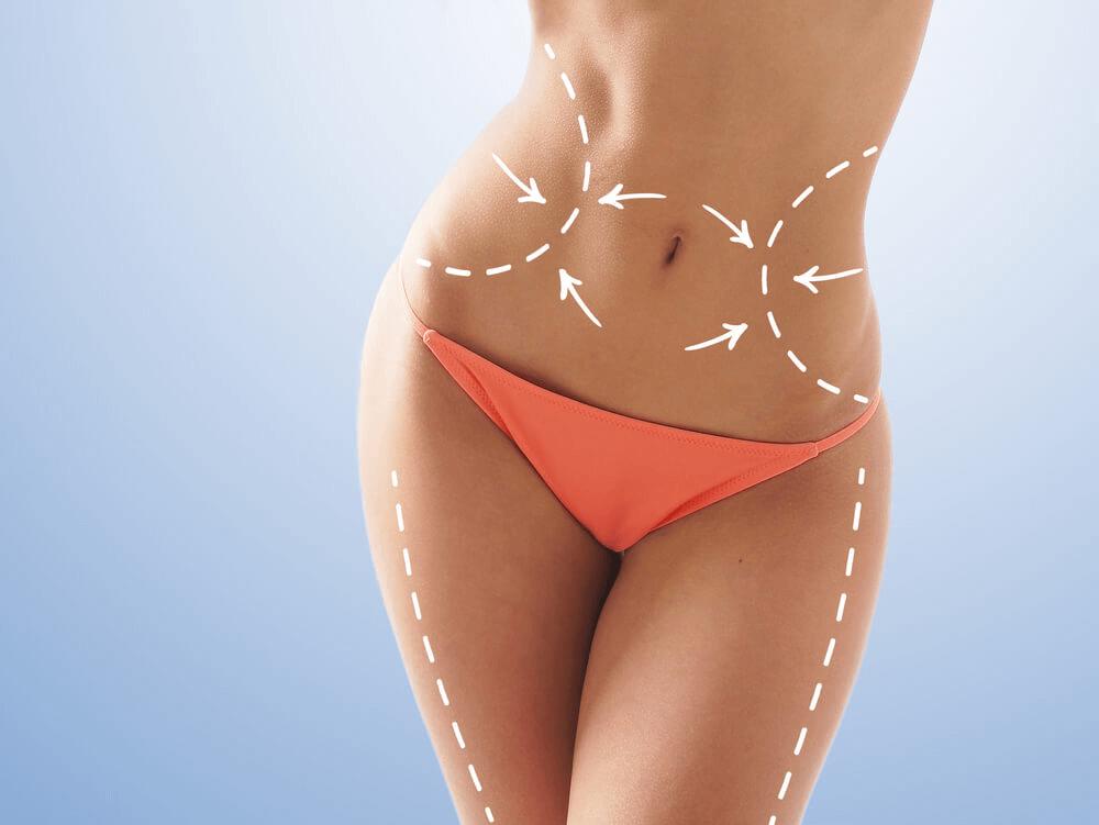 Fettsuging er en del av figurforming