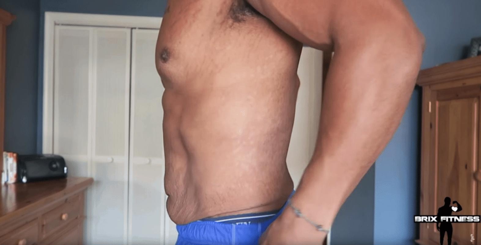 løs hud